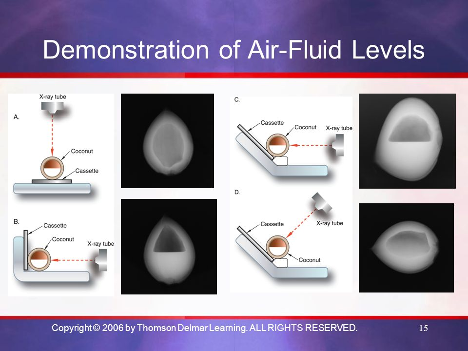 Demonstration of Air-Fluid Levels