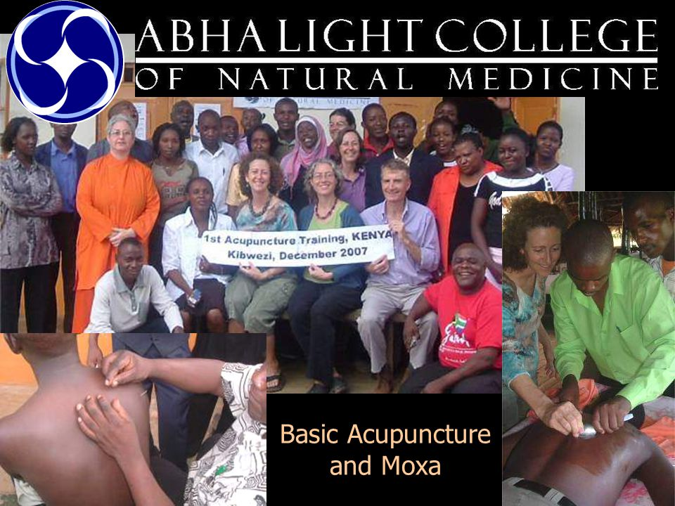 Basic Acupuncture and Moxa