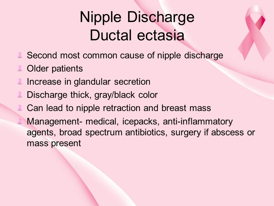 Nipple Discharge Ductal ectasia