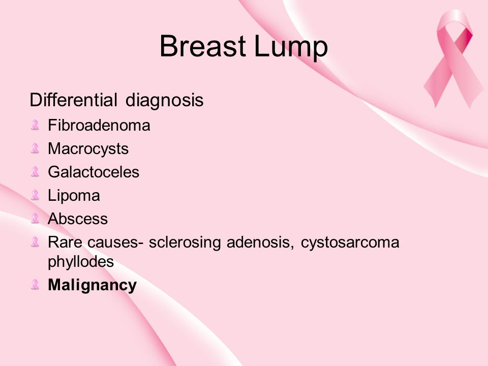 Breast Lump Differential diagnosis Fibroadenoma Macrocysts