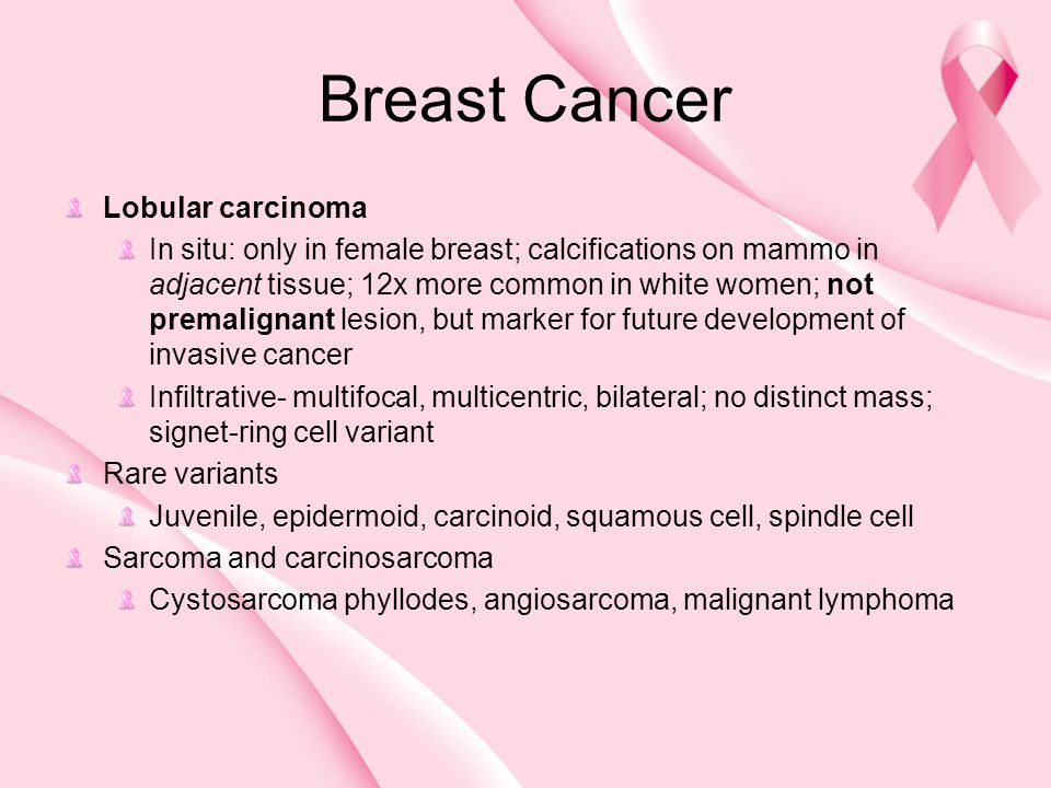 Breast Cancer Lobular carcinoma