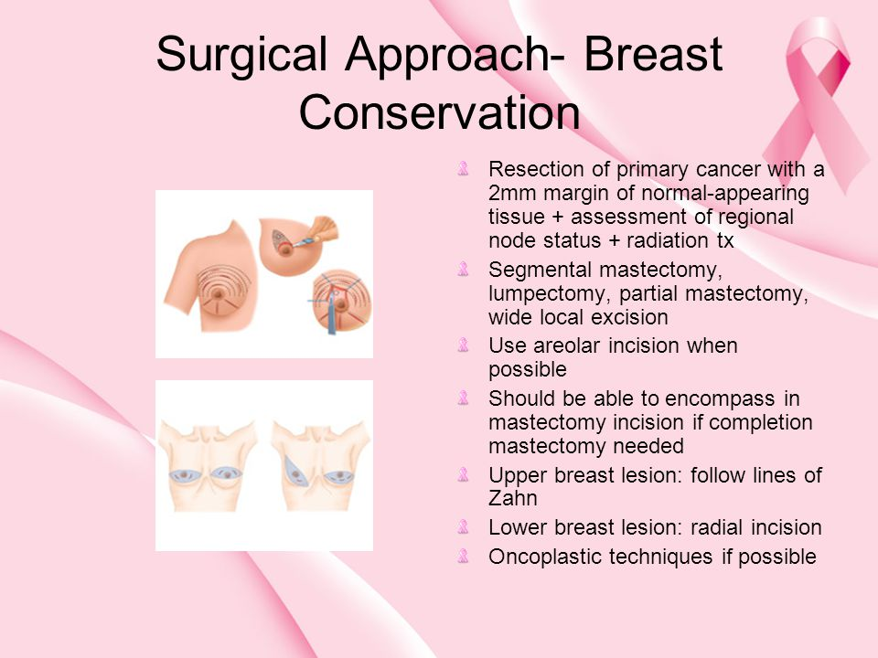 Surgical Approach- Breast Conservation