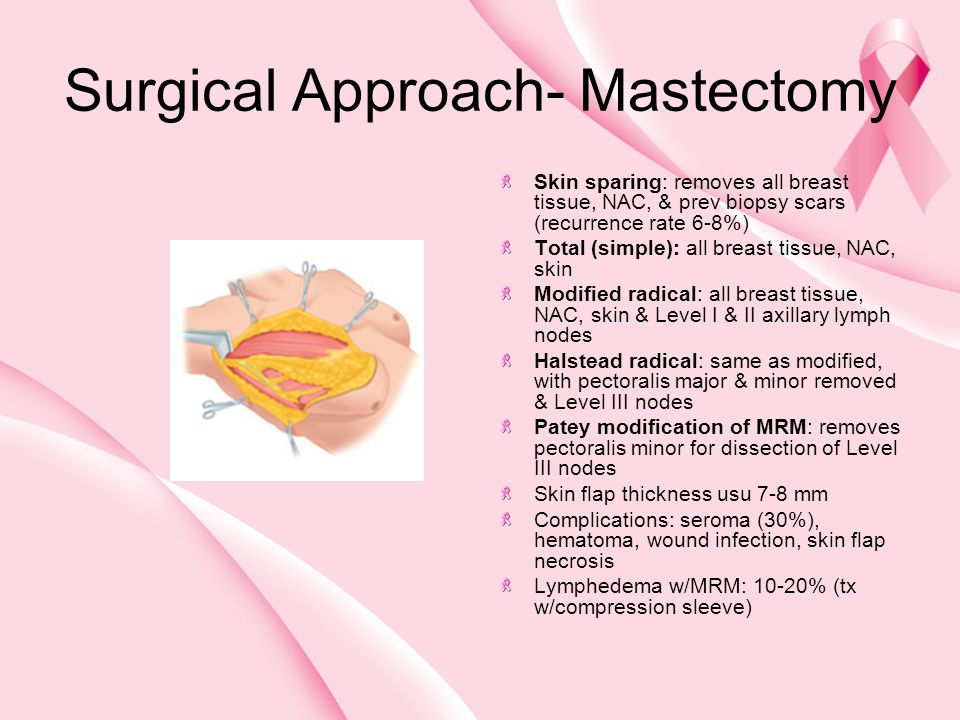 Surgical Approach- Mastectomy