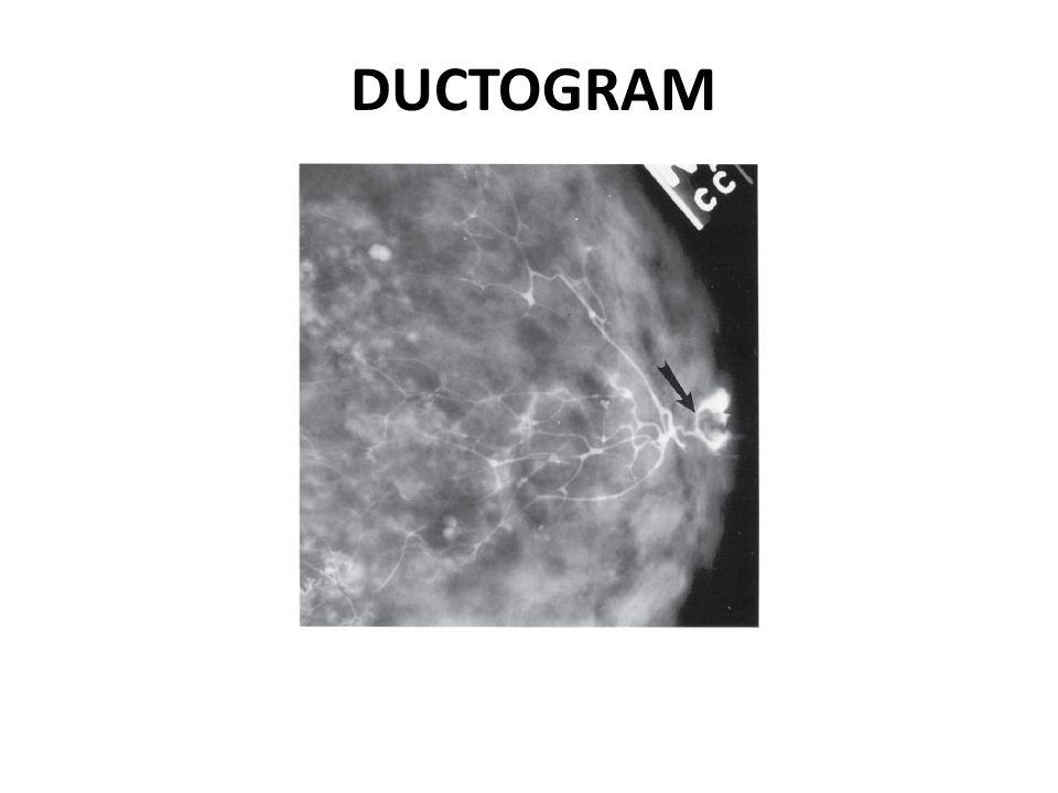 DUCTOGRAM