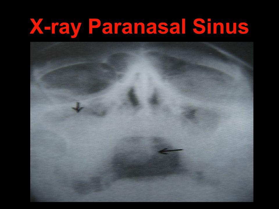 X-ray Paranasal Sinus