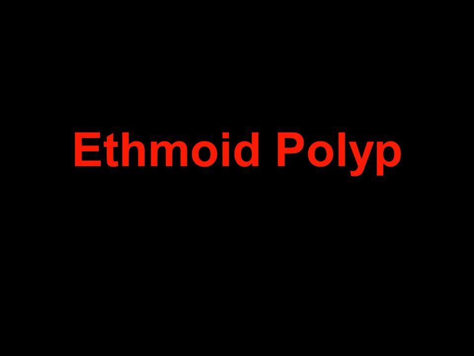 Ethmoid Polyp