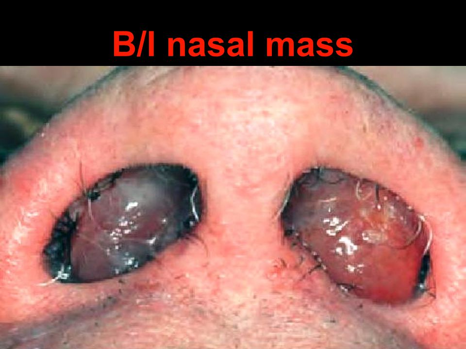 B/l nasal mass