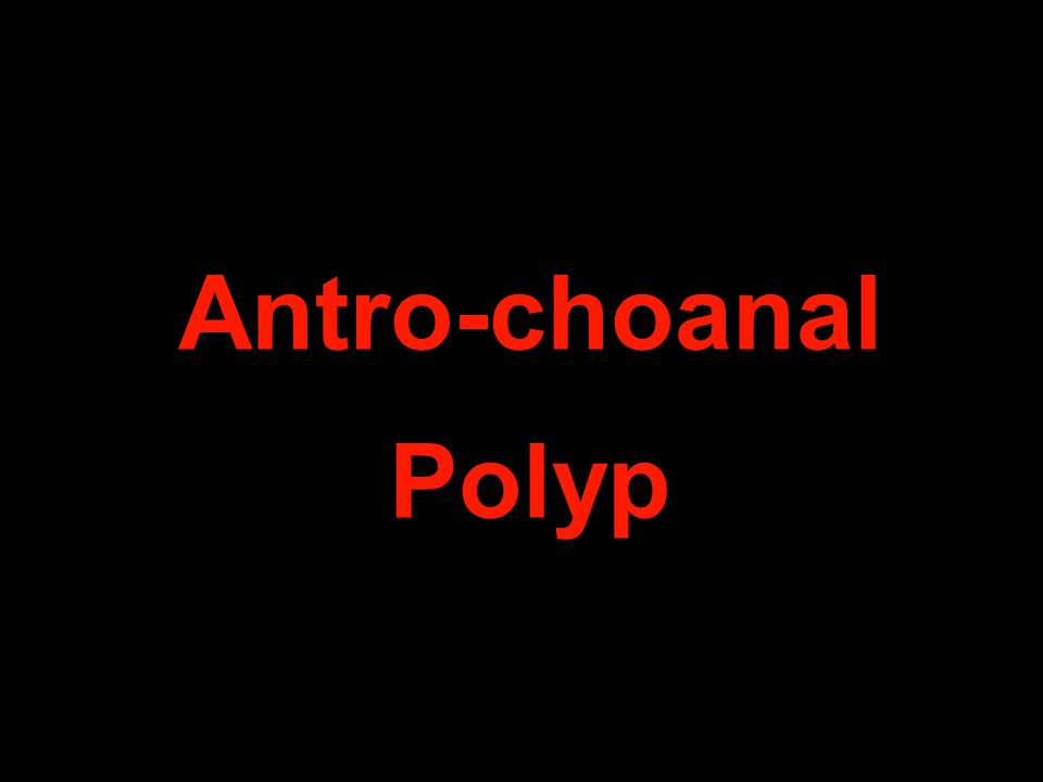 Antro-choanal Polyp