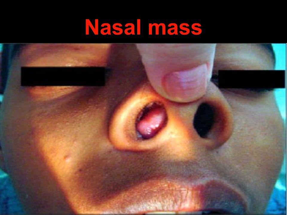Nasal mass