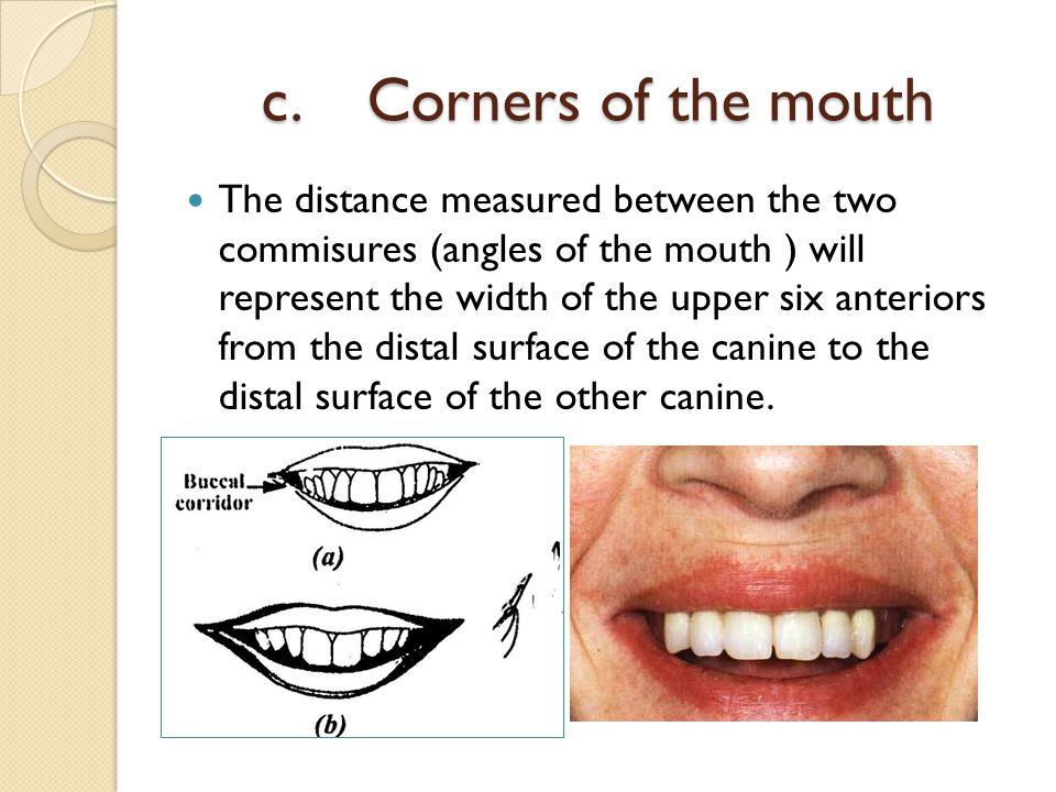 c. Corners of the mouth
