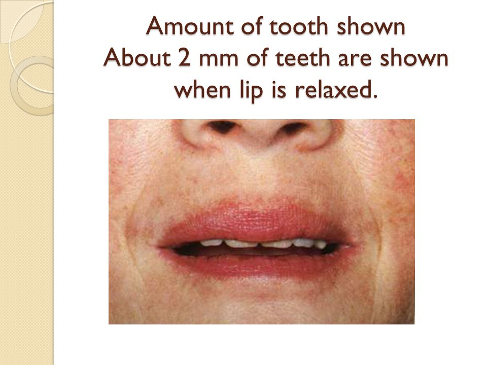 Amount of tooth shown About 2 mm of teeth are shown when lip is relaxed.