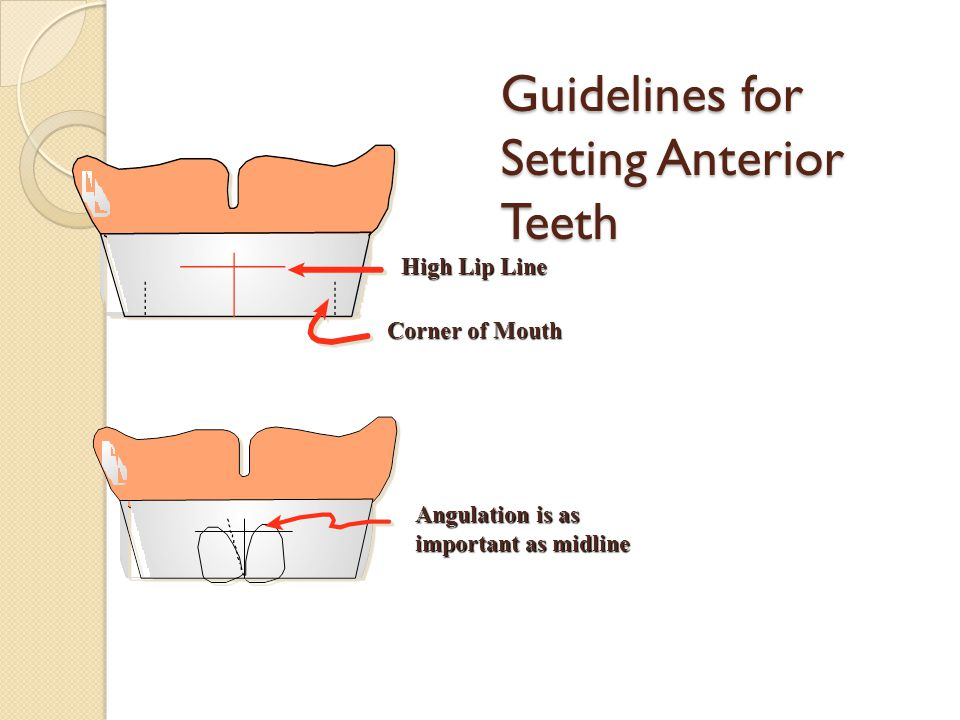 Guidelines for Setting Anterior Teeth