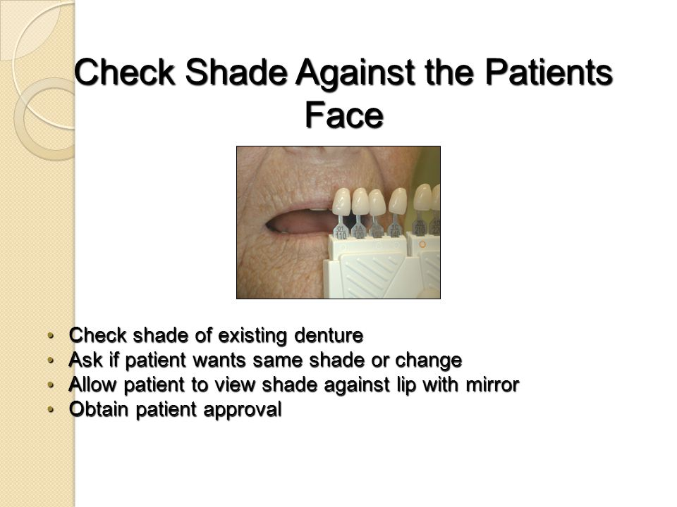 Check Shade Against the Patients Face