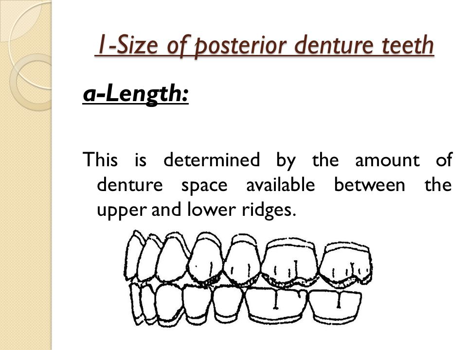 1-Size of posterior denture teeth