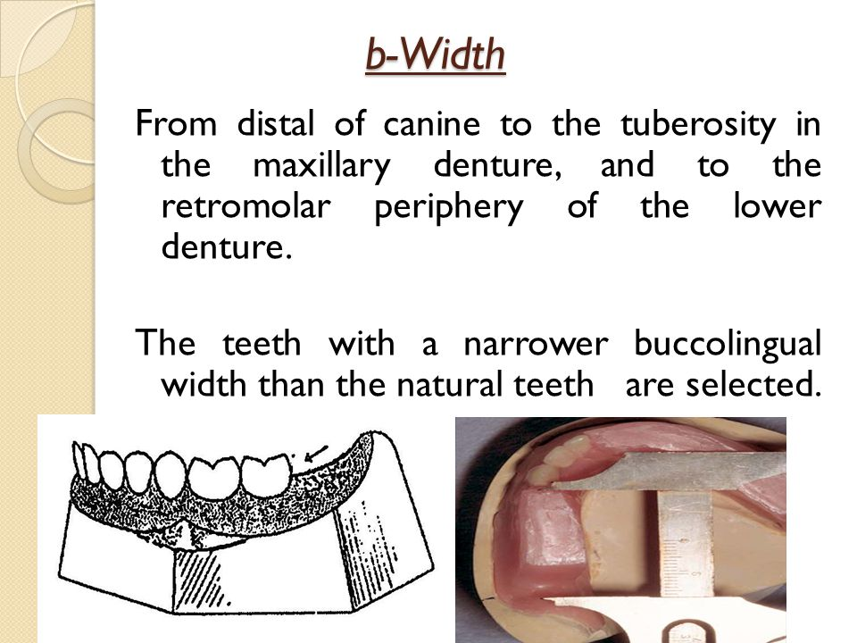 b-Width From distal of canine to the tuberosity in the maxillary denture, and to the retromolar periphery of the lower denture.