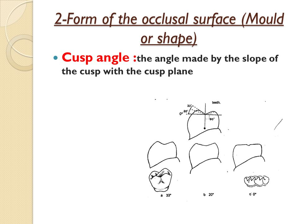 2-Form of the occlusal surface (Mould or shape)