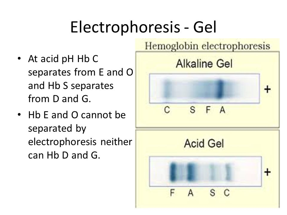 Electrophoresis - Gel At acid pH Hb C separates from E and O and Hb S separates from D and G.