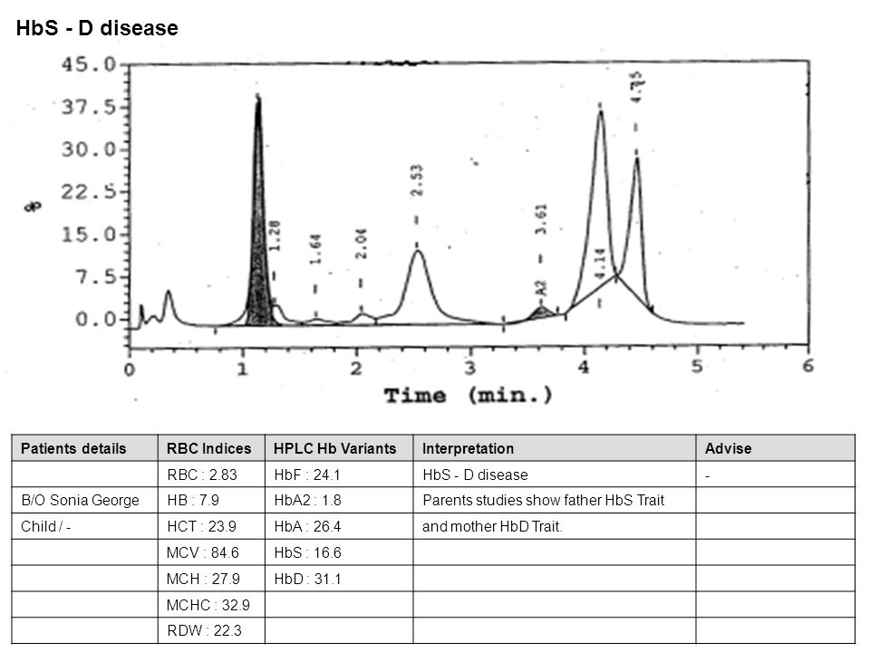 HbS - D disease Patients details RBC Indices HPLC Hb Variants