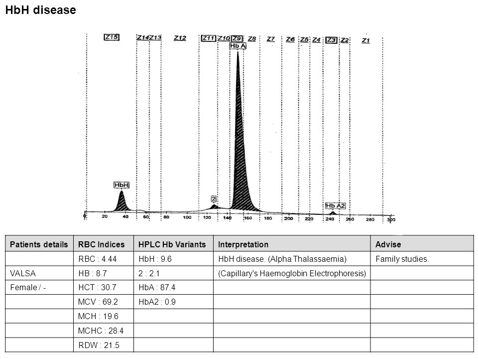 HbH disease Patients details RBC Indices HPLC Hb Variants