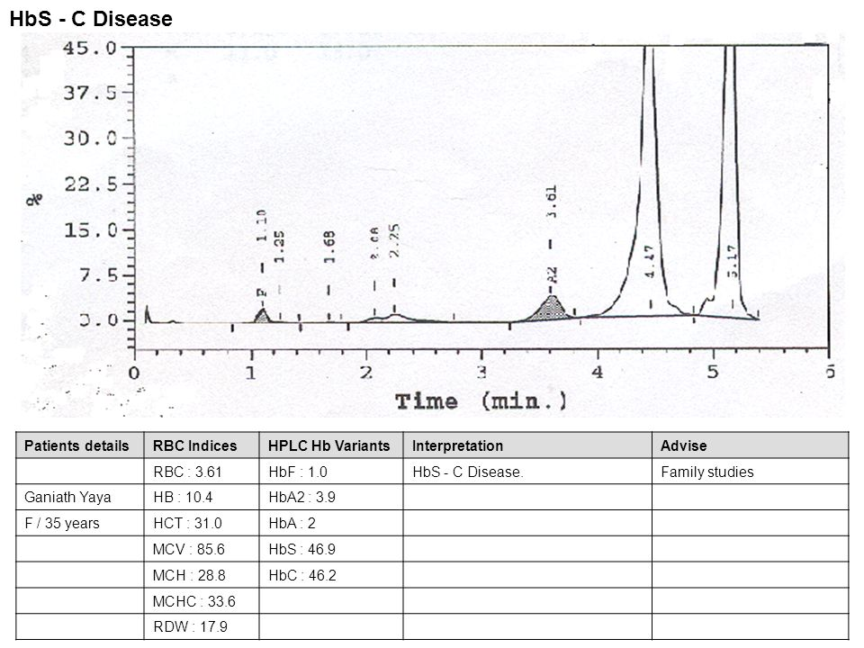 HbS - C Disease Patients details RBC Indices HPLC Hb Variants