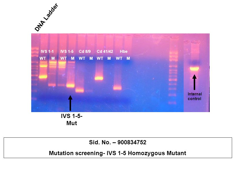Mutation screening- IVS 1-5 Homozygous Mutant
