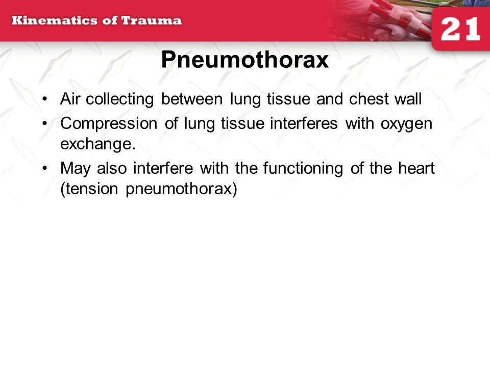 Pneumothorax Air collecting between lung tissue and chest wall