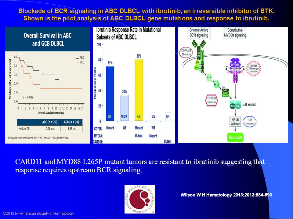 Blockade of BCR signaling in ABC DLBCL with ibrutinib, an irreversible inhibitor of BTK. Shown is the pilot analysis of ABC DLBCL gene mutations and response to ibrutinib.