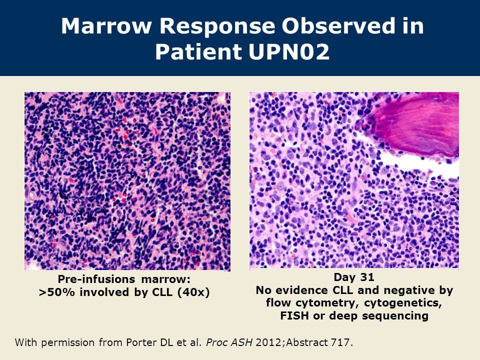 Marrow Response Observed in Patient UPN02