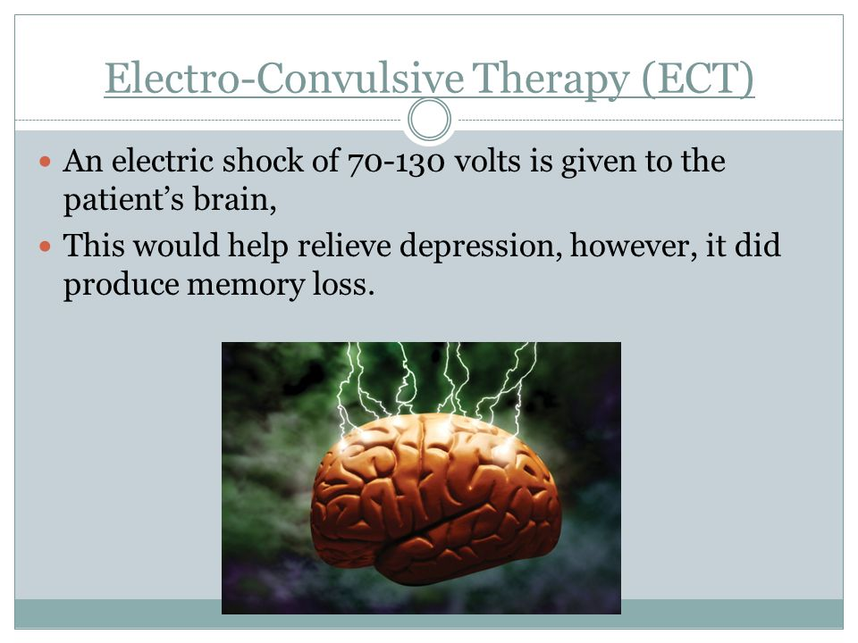 Electro-Convulsive Therapy (ECT)