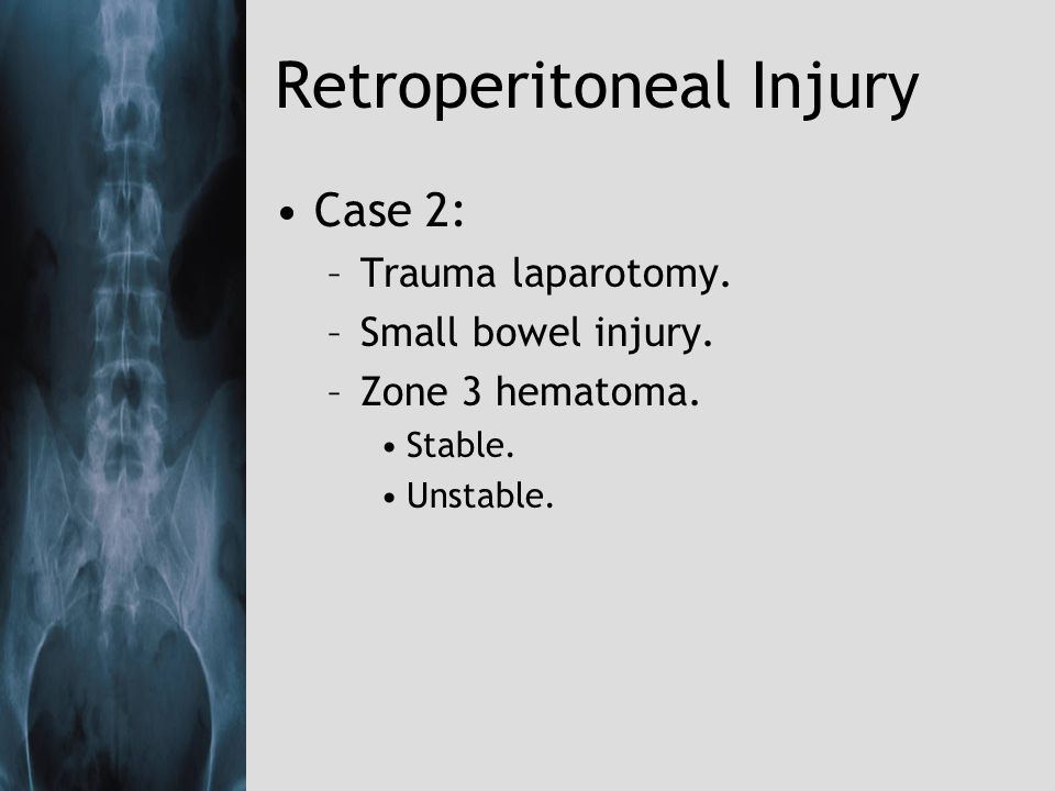 Retroperitoneal Injury