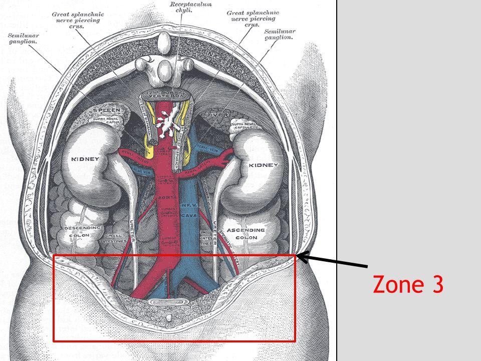 Zone 3