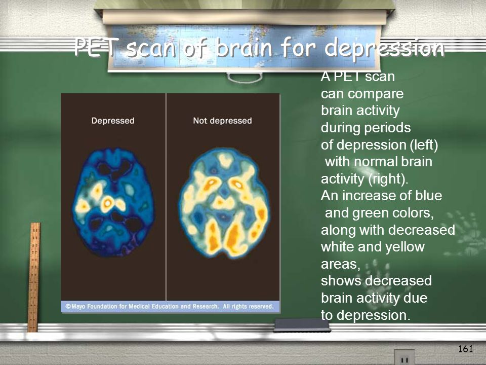 PET scan of brain for depression
