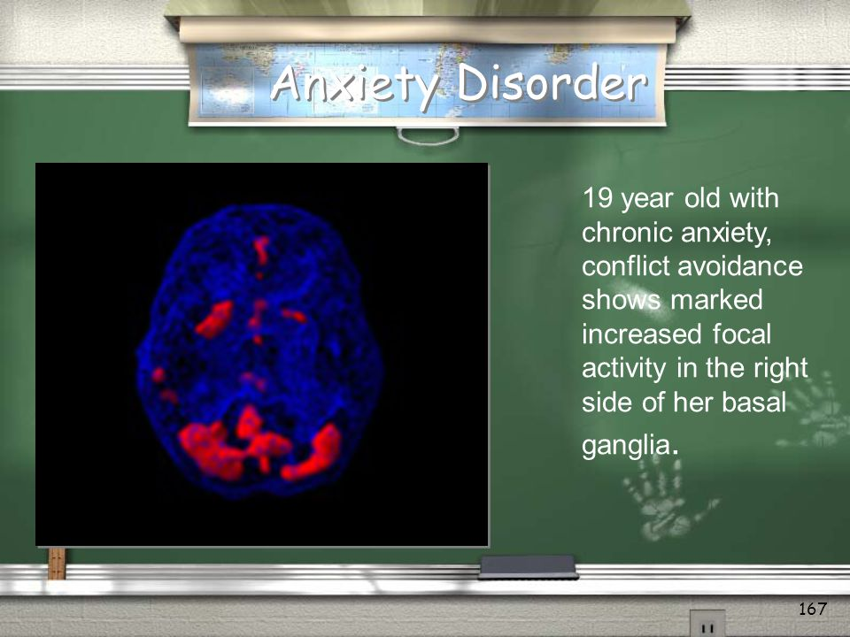 Anxiety Disorder 19 year old with chronic anxiety, conflict avoidance shows marked increased focal activity in the right side of her basal ganglia.