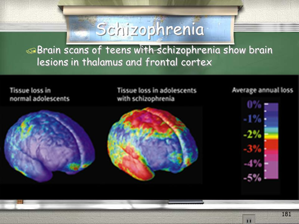Schizophrenia Brain scans of teens with schizophrenia show brain lesions in thalamus and frontal cortex.