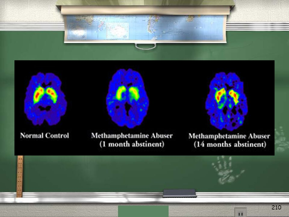 Brain images of a person who has never used methamphetamine (left) and of a methamphetamine user after 1 month of abstinence (center).