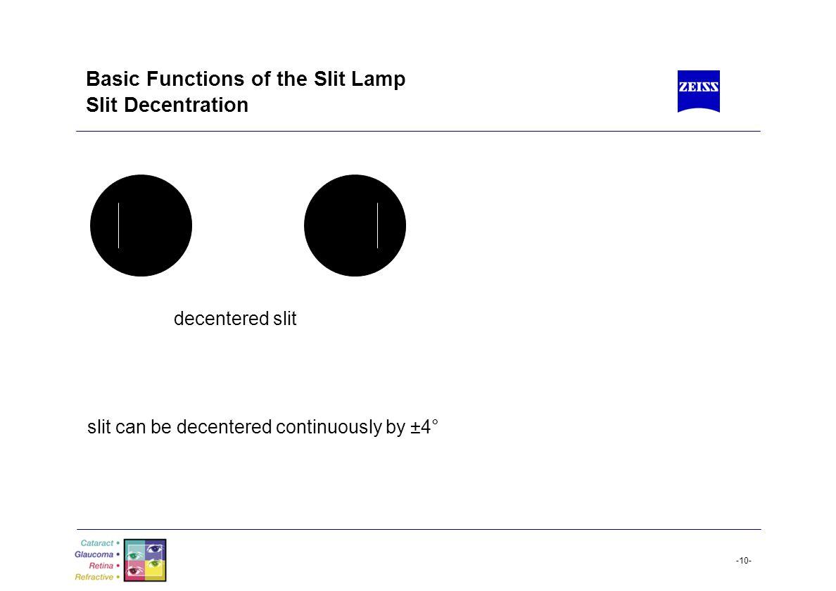 Basic Functions of the Slit Lamp Slit Decentration