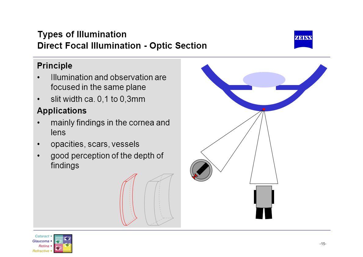 Types of Illumination Direct Focal Illumination - Optic Section