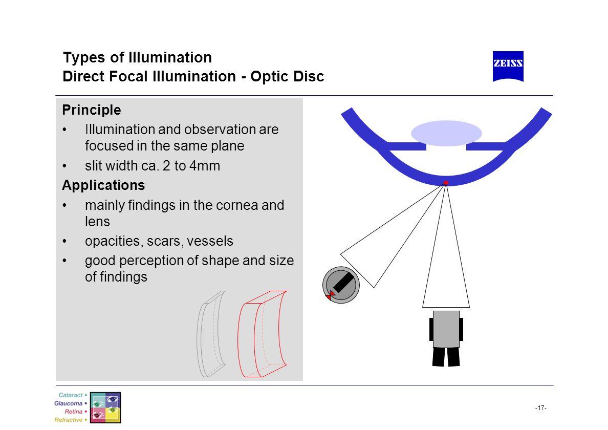 Types of Illumination Direct Focal Illumination - Optic Disc