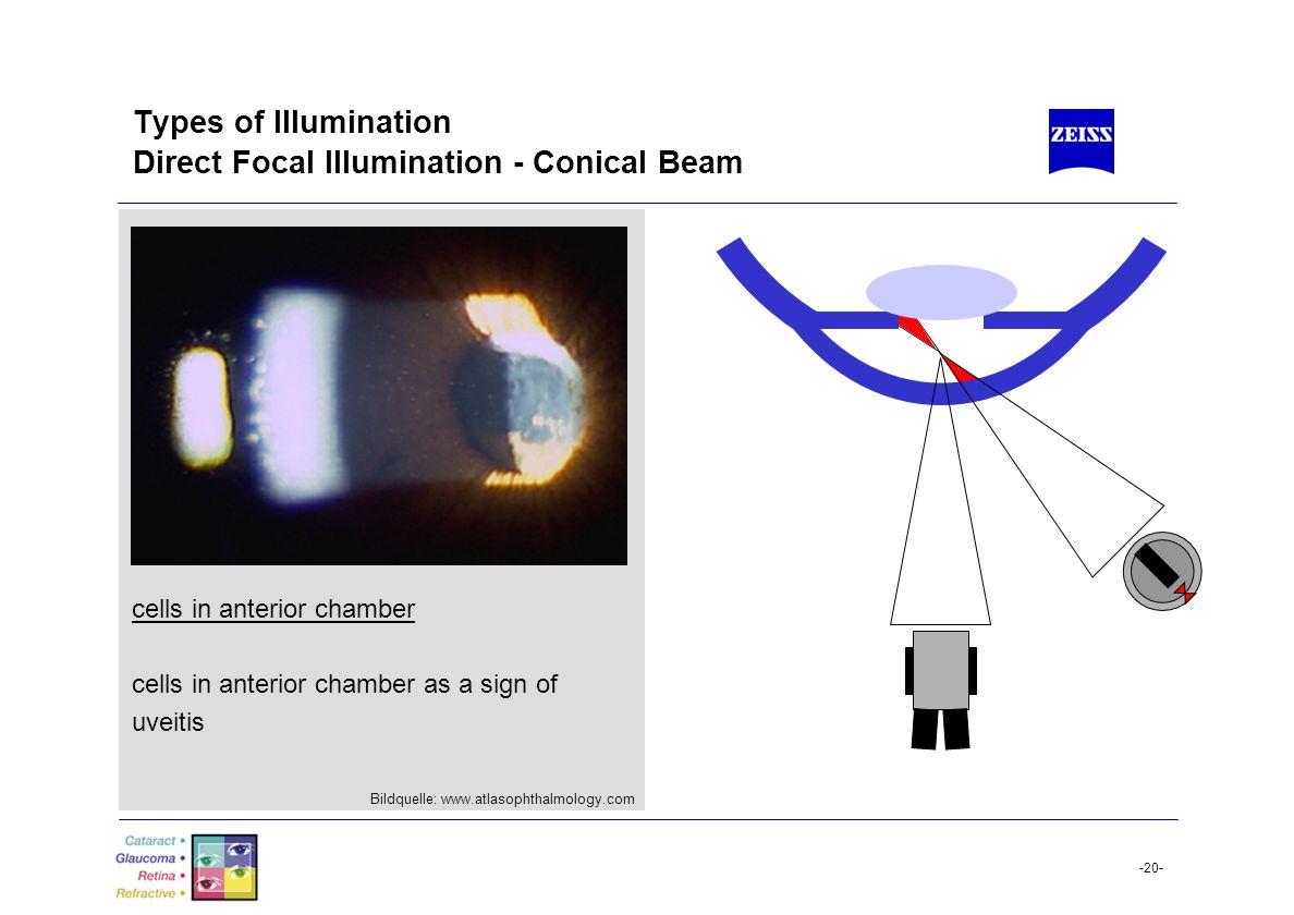 Types of Illumination Direct Focal Illumination - Conical Beam
