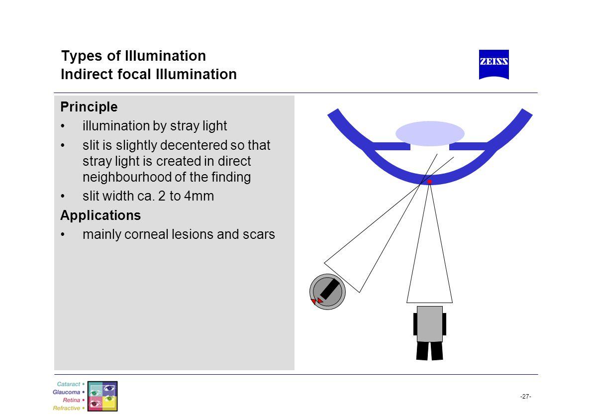 Types of Illumination Indirect focal Illumination