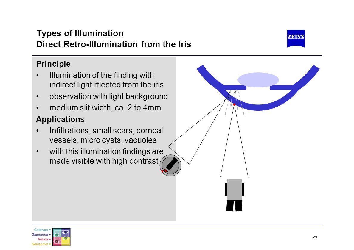 Types of Illumination Direct Retro-Illumination from the Iris