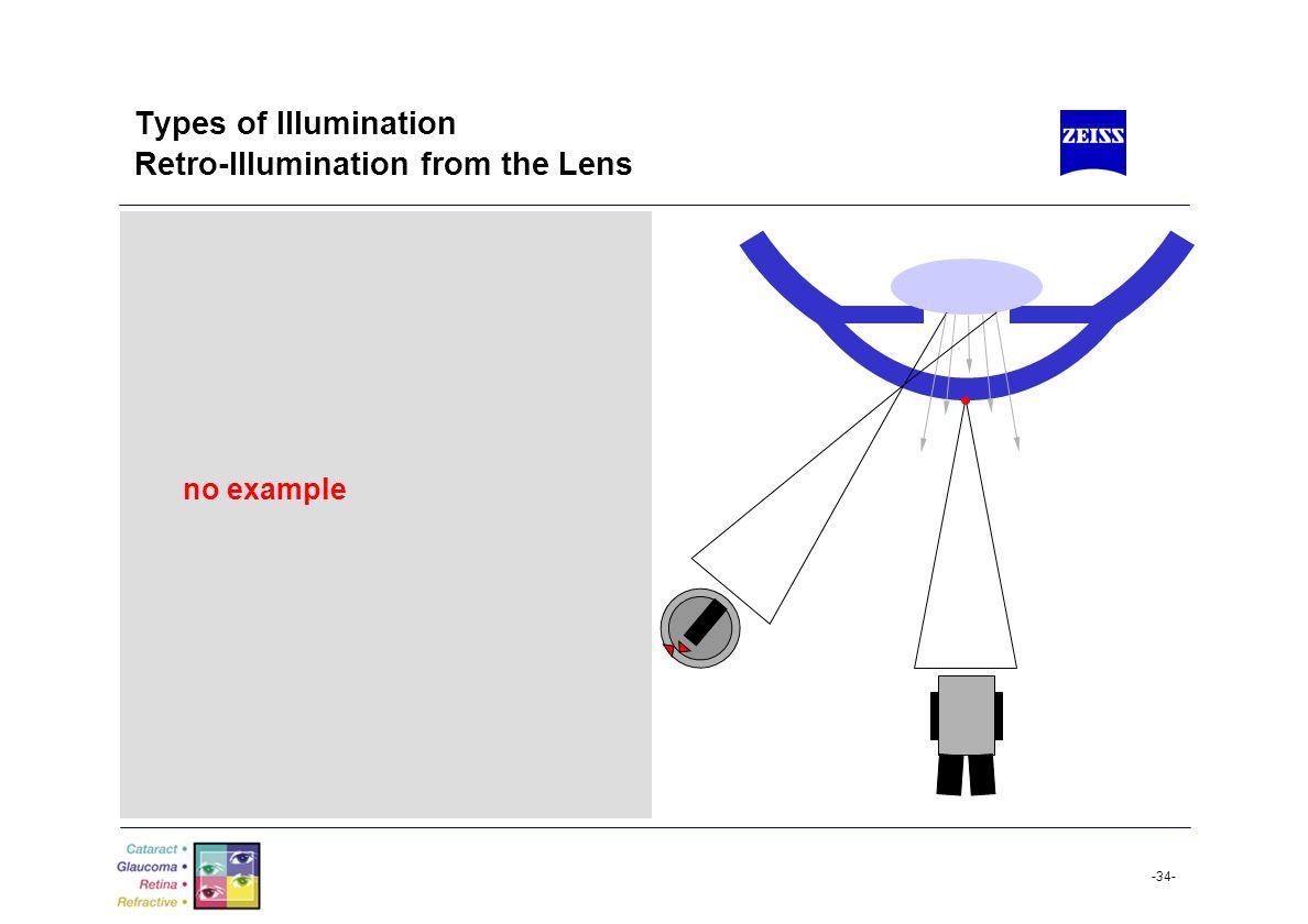 Types of Illumination Retro-Illumination from the Lens