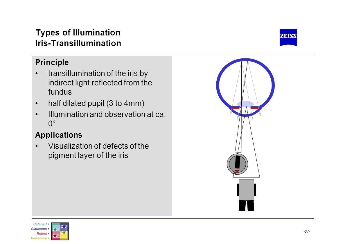 Types of Illumination Iris-Transillumination