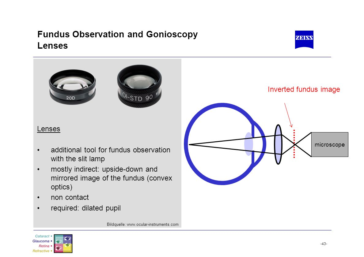 Fundus Observation and Gonioscopy Lenses