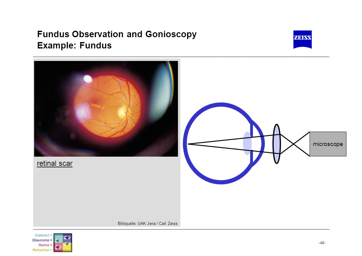 Fundus Observation and Gonioscopy Example: Fundus