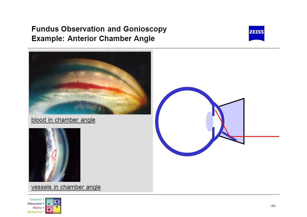Fundus Observation and Gonioscopy Example: Anterior Chamber Angle