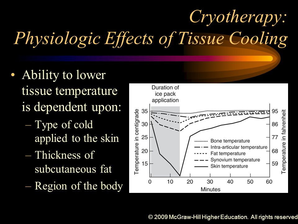 Cryotherapy: Physiologic Effects of Tissue Cooling