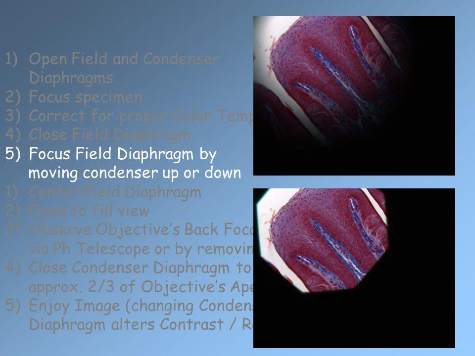 Open Field and Condenser Diaphragms Focus specimen