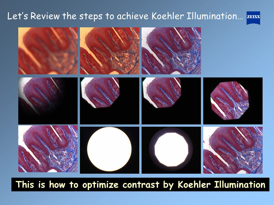 This is how to optimize contrast by Koehler Illumination