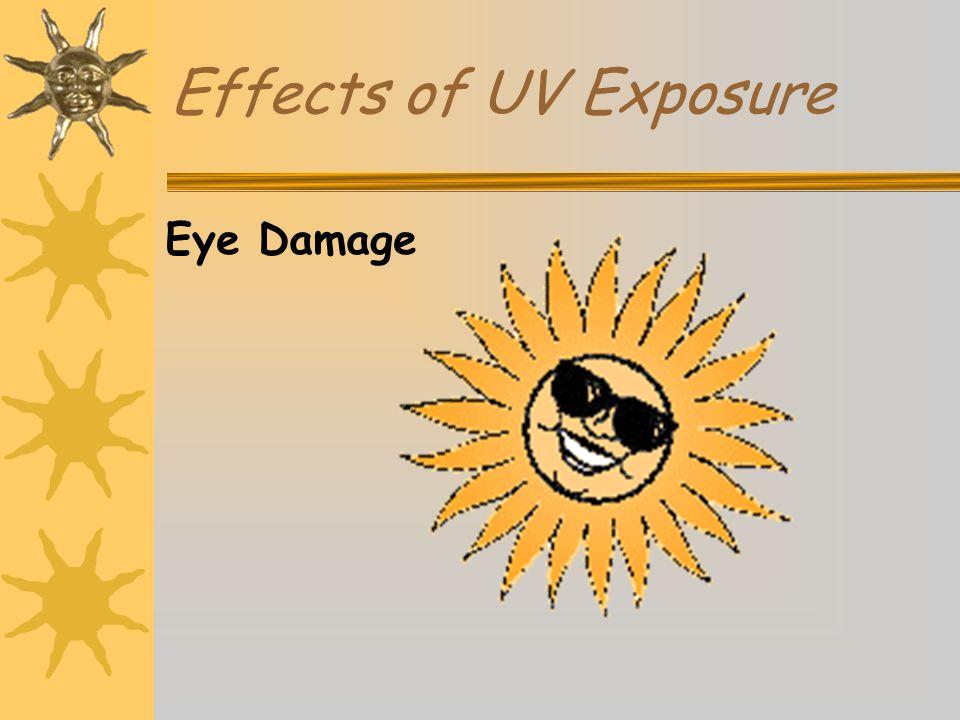 Effects of UV Exposure Eye Damage